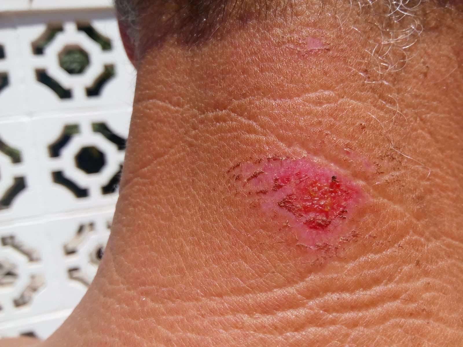 SwimRun wetsuit neck abrasion before Aloe