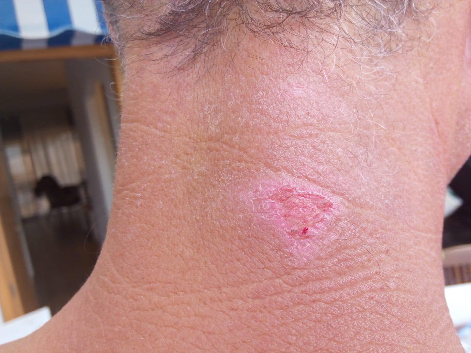 SwimRun wetsuit neck abrasion afteraloe