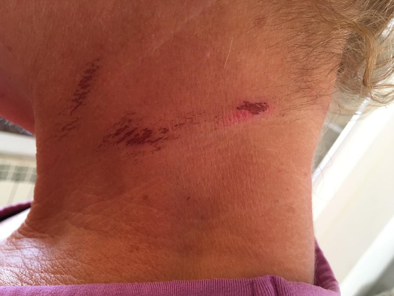 Swimrun injuries